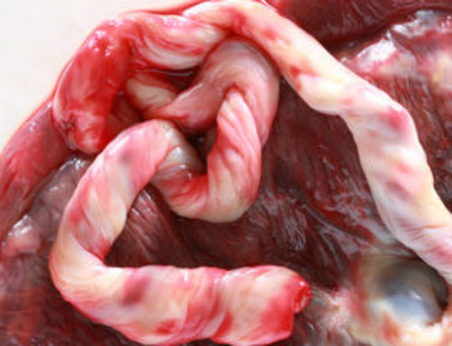 Delivering your placenta: The third stage of labour