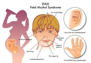 sindrome alcolica fetale